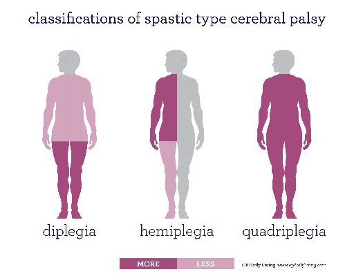 Spastic Cerebral Palsy Classifications