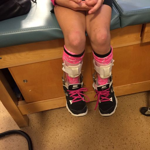 A person sitting on an examine table, legs shown with pink colored socks, Nike athletic shoes, and ankle | foot orthoses (orthotics) around the ankles and calves of the person sitting.